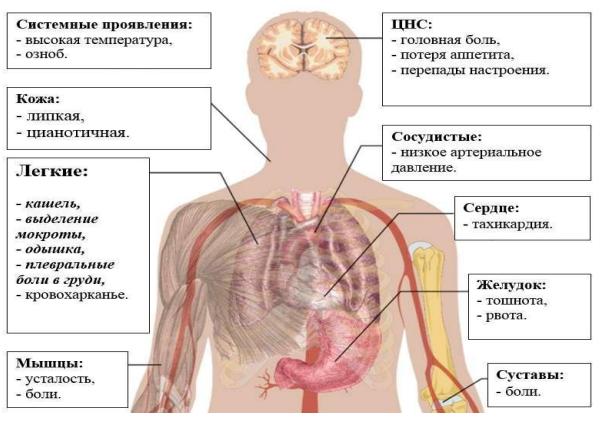 Причины, признаки и лечение атипичных пневмоний