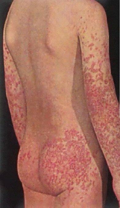 Геморрагический васкулит у детей (20 фото): симптомы и лечение, клинические рекомендации при болезни шенлейн геноха, причины, системная форма и диета