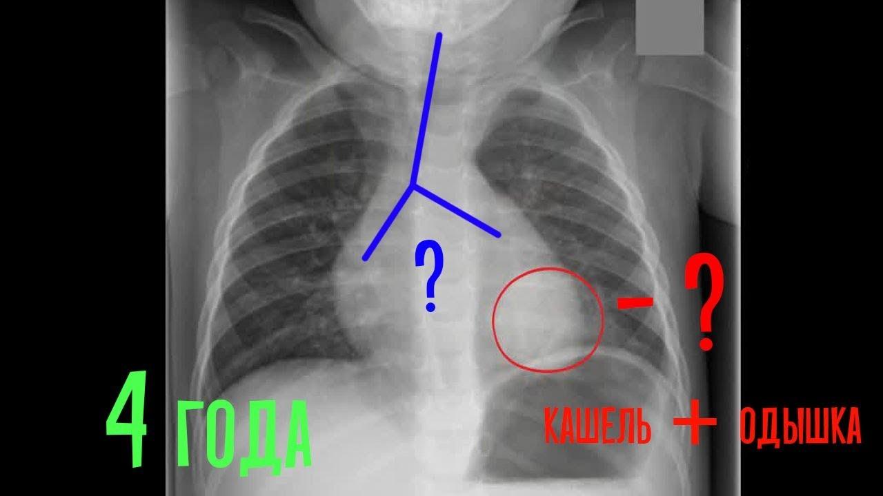 Пневмония или воспаление легких у грудничка: признаки,  лечение, осложнения
