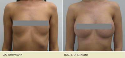 Как сохранить красивую грудь после родов?