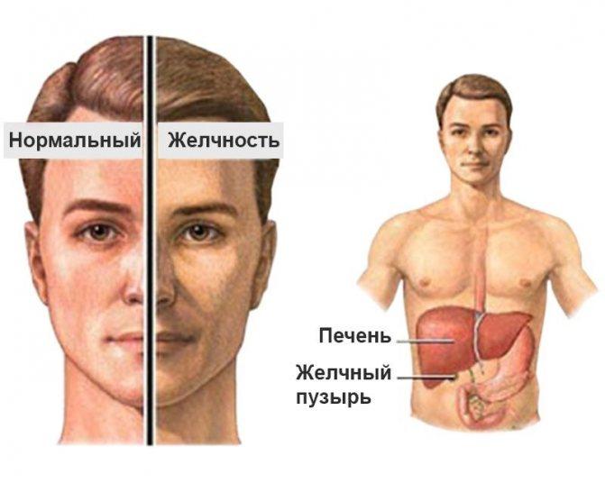 Синдром жильбера – что это такое и чем он опасен: симптомы, диагностика и лечение заболевания - docdoc.ru