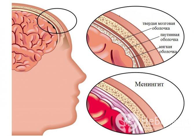 Менингит клинические проявления
