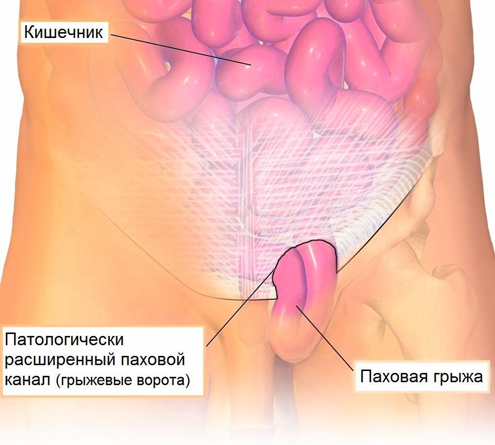 Почему возникает паховая грыжа, и нужно ли ее оперировать?