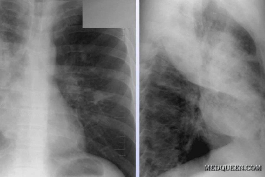 Диагностика туберкулеза легких на рентгеновских снимках (фото)