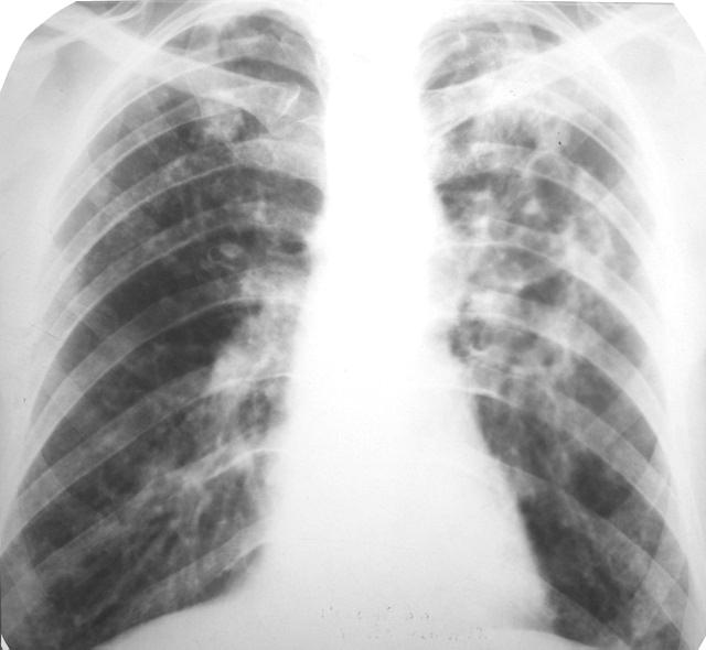 Что дает рентген легких. какие заболевания легких можно увидеть на рентгене