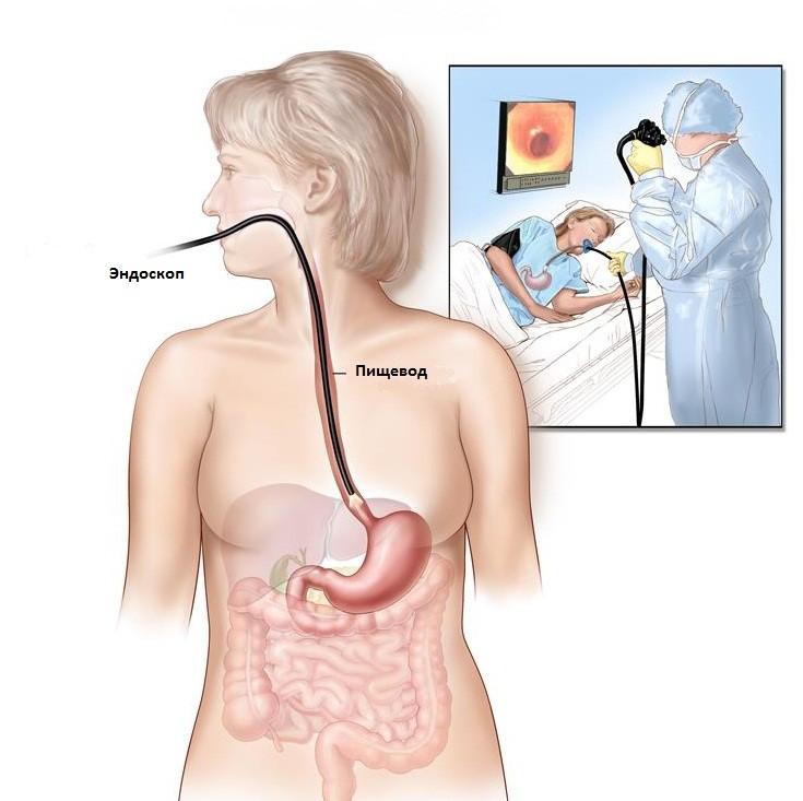 Рак пищевода: особенности течения заболевания и возможные осложнения