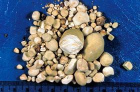 Список таблеток, разбивающие камни в почках
