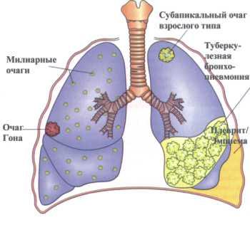 Туберкулеза легких народные рецепты
