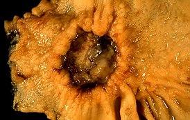 Метастазы в брюшной полости