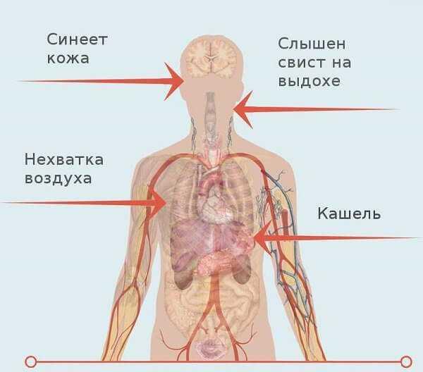 Как проявляется пылевой бронхит