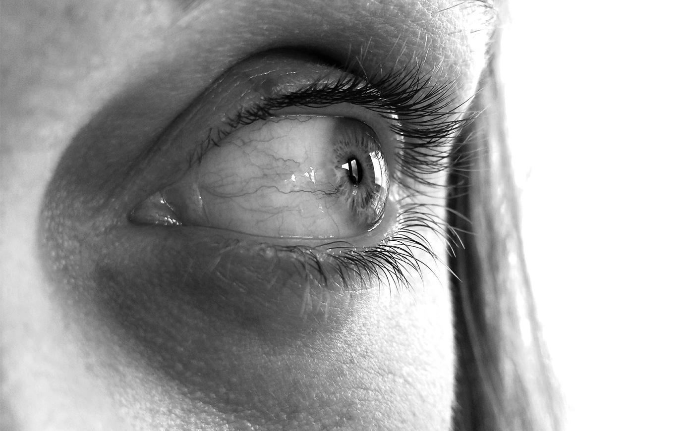 Причины и факторы риска развития глаукомы
