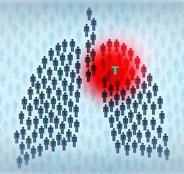 Клиническая картина и методы диагностики туберкулеза мочеполовой системы, способы лечения