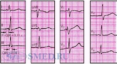 Признаки синдрома вольфа-паркинсона-уайта (wpw) на экг