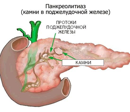 Особенности диеты при обнаружении камней в поджелудочной железе