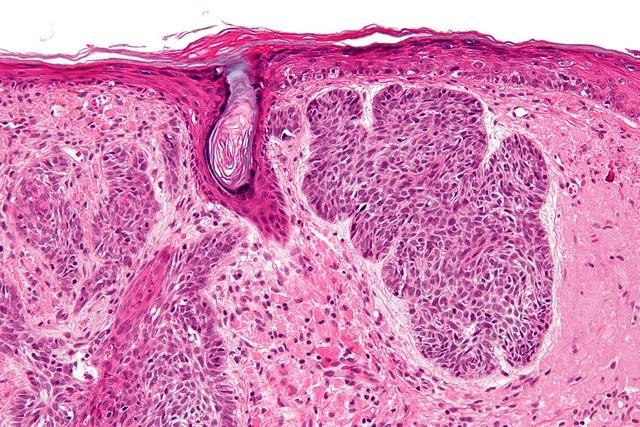 Базалиома на лице: симптомы, лечение и фото разных стадий