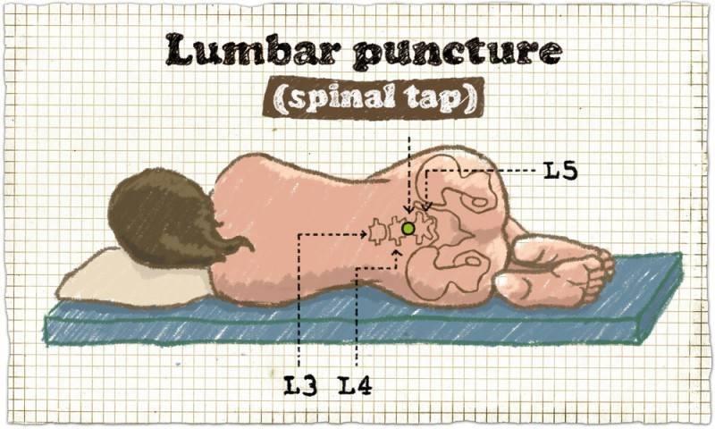 Лечение после пункции позвоночника