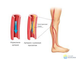 Облитерирующий эндартериит нижних конечностей: что это, симптомы и стадии, причины, лечение и прогноз