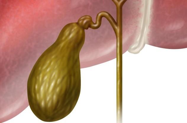 Что такое билиарный сладж в желчном пузыре