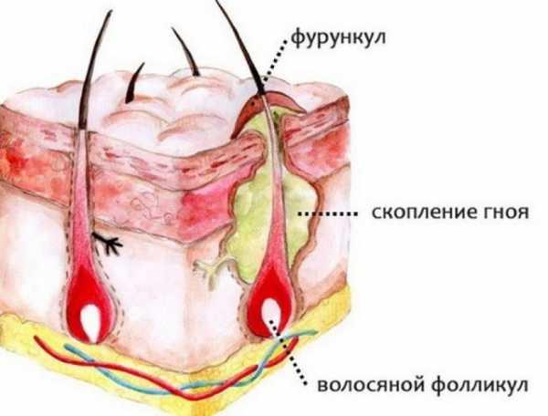 Об уплотнениях и шишках на лице под кожей: причины появления, способы избавления