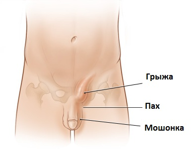 Паховая грыжа у женщин: причины, симптомы и лечение