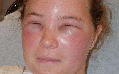 Причины, симптомы и лечение отека квинке