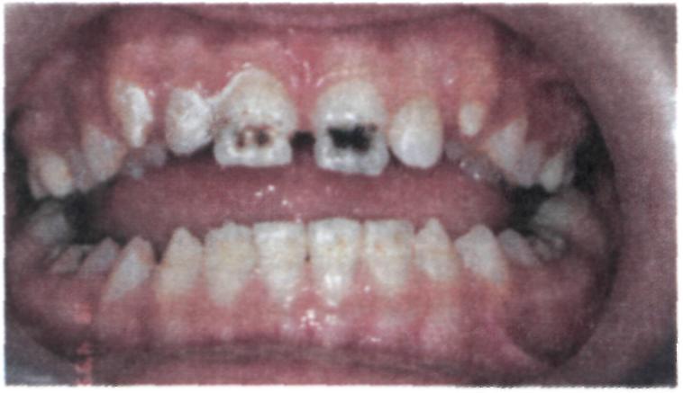 Когда темнеют зубы