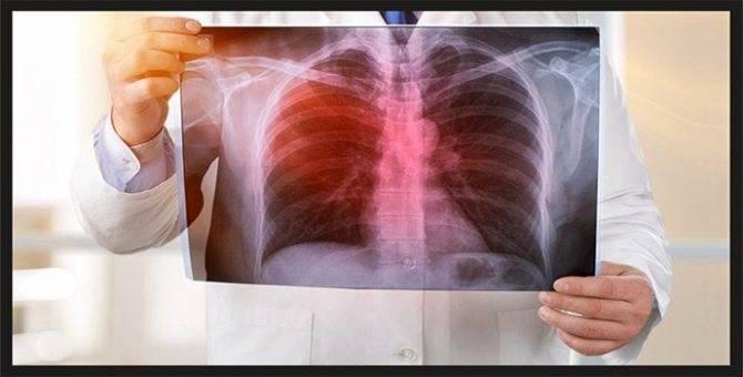 Симптомы туберкулеза легких у взрослых мужчин и женщин на ранней стадии
