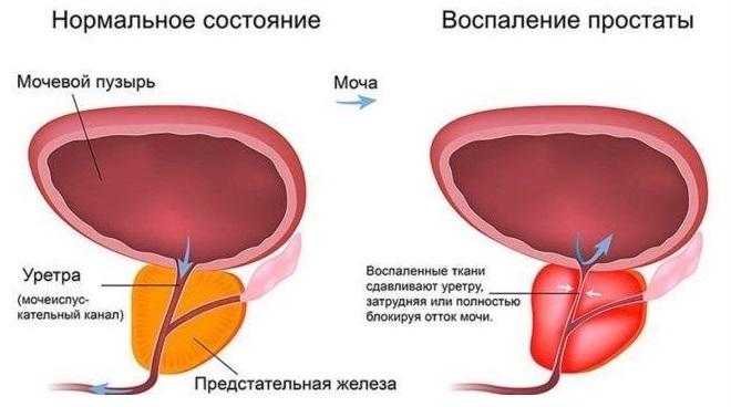 Лекарство афала от простатита, инструкция по применению, противопоказания, отзывы