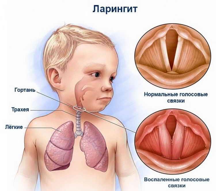 Что делать, если кашель у взрослого не проходит уже месяц