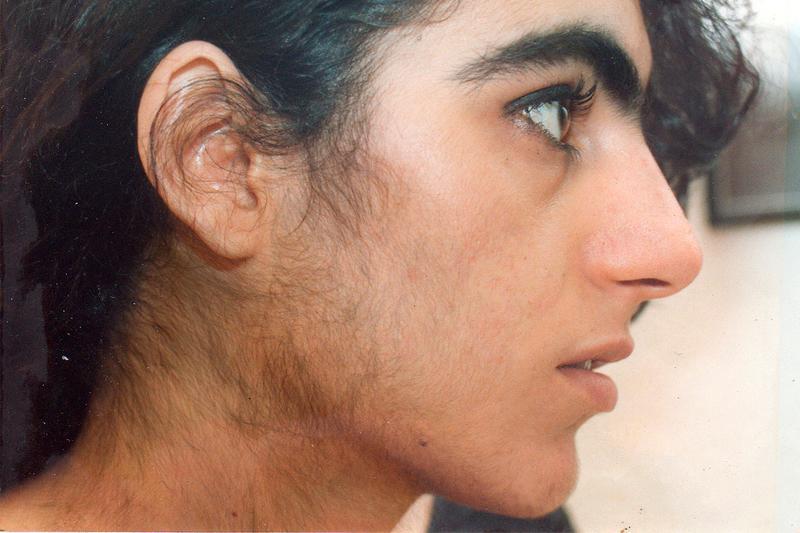 Гирсутизм. причины, симптомы, диагностика и лечение патологии