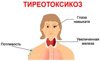 Хаит щитовидной железы: чем опасно хроническое воспаление