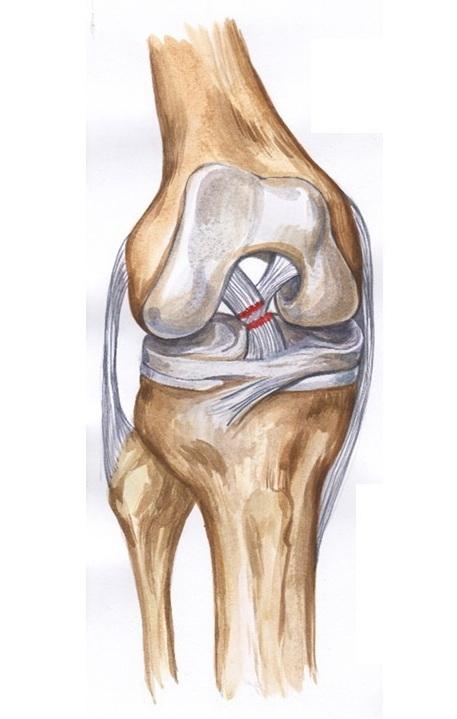 Симптомы и лечение разрыва связок коленного сустава (консервативное, операция)