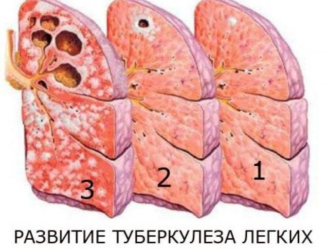 Как вылечить туберкулёз лёгких в домашних условиях