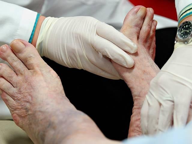 Как лечить окклюзию артерий (непроходимость сосудов) нижних конечностей