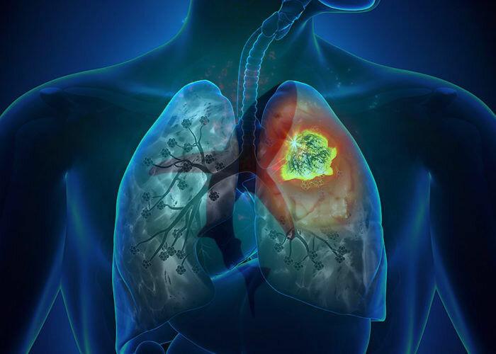 Фиброз легких: что это, симптомы, лечение, опасно или нет