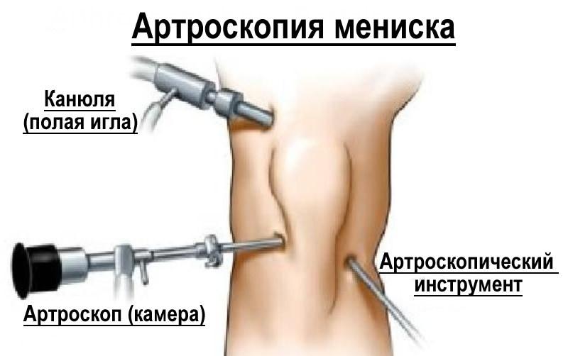Повреждение менисков коленного сустава. механизм повреждения. клиника, диагностика, лечение.