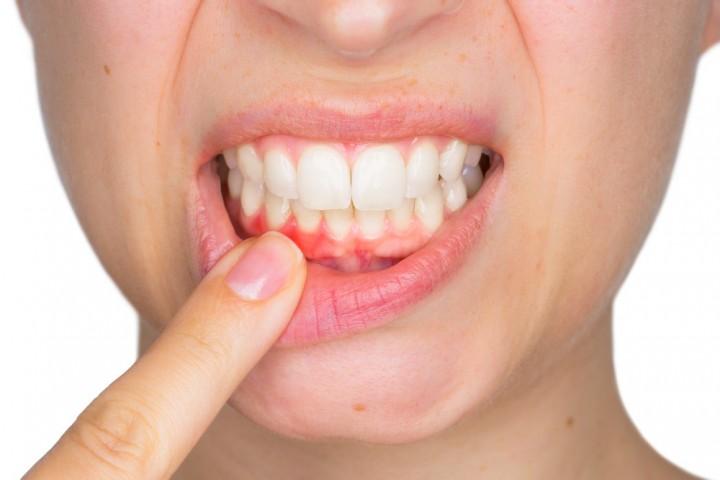 Бережем зубы: полезные и вредные продукты