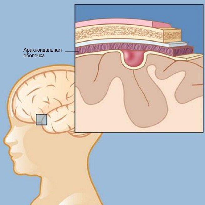 Причины и симптомы арахноидальной кисты головного мозга