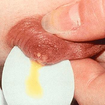 Причины выделений желтого цвета из молочной железы при нажатии