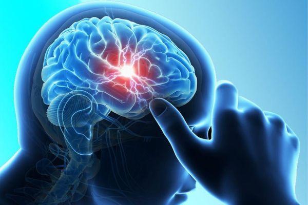 Арахноидальная киста головного мозга симптомы