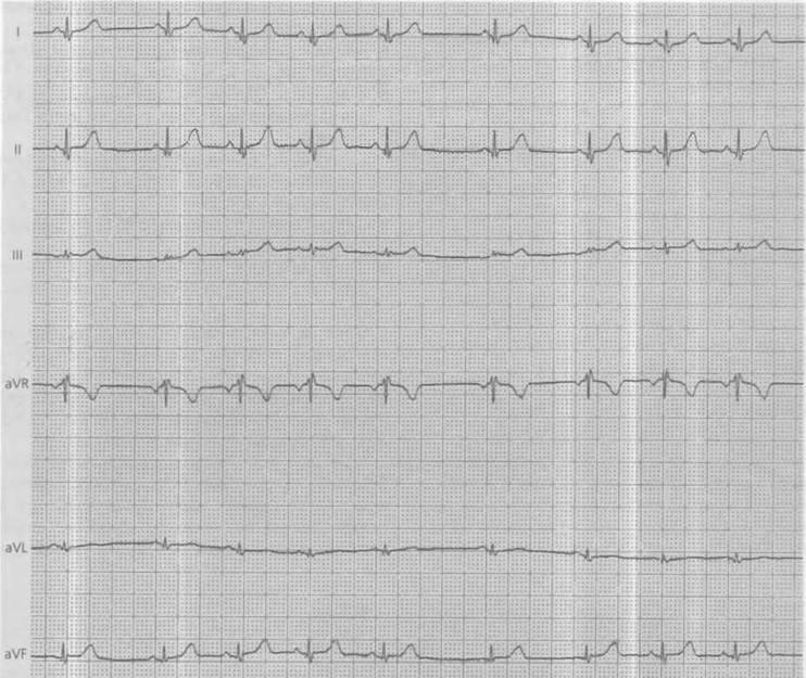Синдром впв сердца