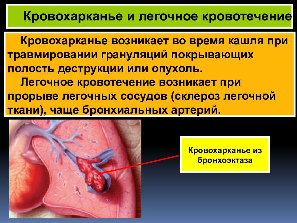 Кровохарканье: понятие, причины и формы, проявления, диагностика, лечение
