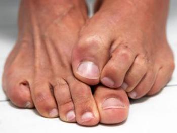 Ногти на ногах коричневого цвета