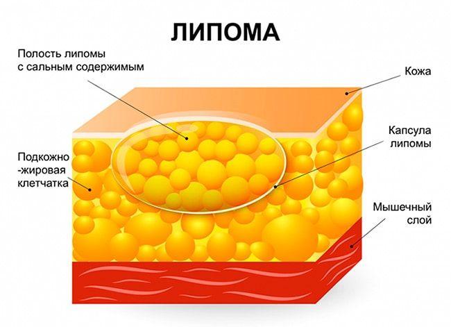 Гипомастия: маленький объем – большие проблемы, или нет?