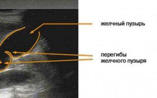 Причины образования и лечение перегиба желчного пузыря