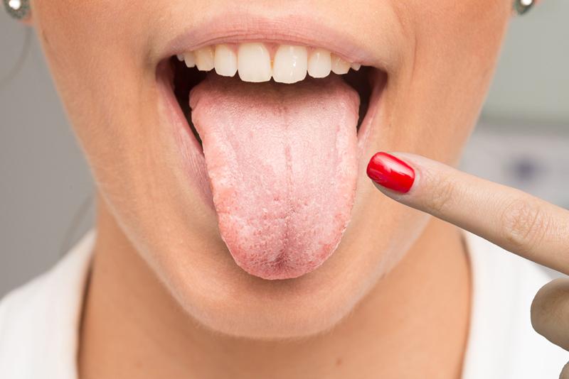 Глоссит: симптомы. лечение глоссита