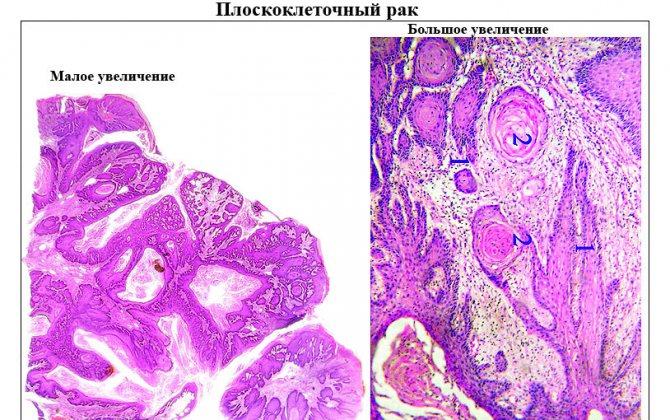 Аденокарцинома - adenocarcinoma - qwe.wiki