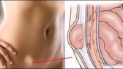 Паховая грыжа у мужчин - симптомы, лечение, операция по удалению