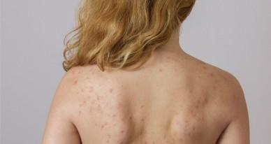 Прыщи на шее у женщин. причина, от чего появляются и чешутся сзади, на грудной клетке, скулах, под подбородком, во время беременности. варианты лечения