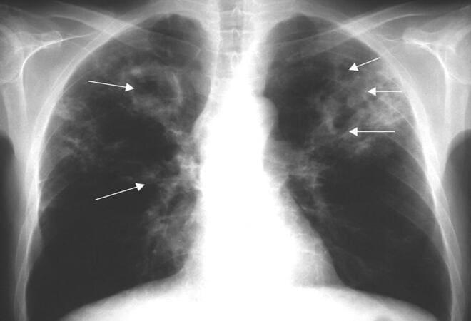Читать книгу очищение и восстановление организма народными средствами после туберкулеза алевтины корзуновой : онлайн чтение - страница 9